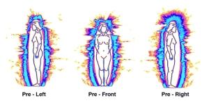 04-Pre-Auras-LFR1